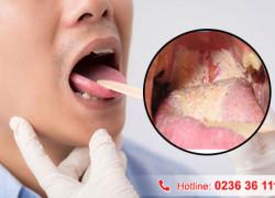 Hình ảnh bệnh lậu ở miệng ra sao?